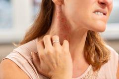 Bärande cirkel för blond kvinna på fingret som har överilat på hals royaltyfri bild