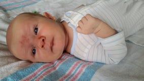 Bébé avec Angel Kiss Birthmarks sur le visage Image stock