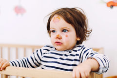 Bébé avec la blessure de visage Photo stock