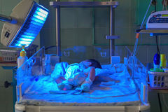 Bébé nouveau-né avec le hyperbilirubinemia sous la lumière UV bleue pour le phototheraphy Image libre de droits