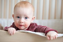 Bébé roux avec la dermatite atopique image libre de droits