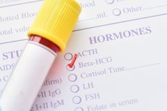Bêta essai d'hormone de hCG images stock