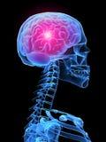 ból głowy. ilustracja wektor