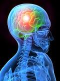 ból głowy. royalty ilustracja
