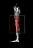ból nogi ilustracji