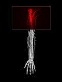 ból ramienia ilustracji