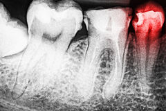 Ból zębu gnicie Na promieniowaniu rentgenowskim Fotografia Stock