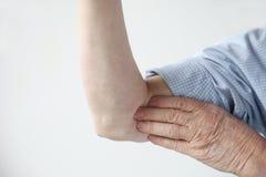 bólowy ręka wierzch Zdjęcie Royalty Free