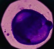 Bösartige Zellen in der pleural Flüssigkeit Stockfotos
