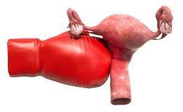 Baarmoederpijn Vrouwelijke baarmoeder met bokshandschoen het 3d teruggeven royalty-vrije illustratie