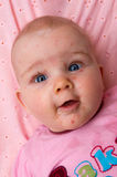 Baby with chicken-pox Stock Image
