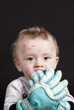 Baby with chickenpox Royalty Free Stock Images