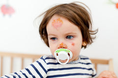 Face bruises and scratches Royalty Free Stock Images