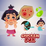 Baby girl with chicken pox rash. infographic set -  illust. Baby girl with chicken pox rash. come with infographic set -  illustration Stock Photography