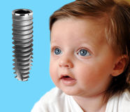 Baby looking on new dental implant isolated. On blue Royalty Free Stock Photo