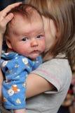 Baby met eczema op gezicht Stock Foto's
