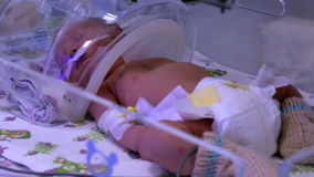 Baby. Neonatal Medicine. stock video footage