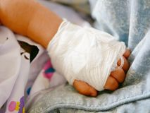 Baby`s hand with intravenouse & x28;IV& x29; catheter stock images