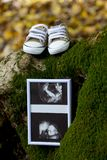 A baby`s ultrasound and shoes. A baby`s ultrasound and slippers placed on the moss of a tree trunk Stock Images