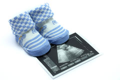 Baby Shoe. S and Ultrasound  images Stock Photos