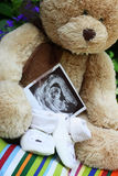 Baby shoes and teddy bear and baby ultrasound. Baby shoes, teddy bear and baby ultrasound Royalty Free Stock Photo