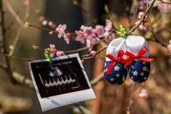 Baby slippers and ultrasound image Stock Image