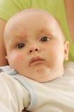 Baby with smallpox Stock Photos