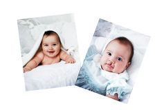 Baby Before and After Surgery. Pictures in a photo album of a baby who had surgery for a cleft lip Stock Photo