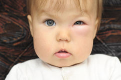 Baby with a swollen eye from an insect bite. Child with a swollen eye from an insect bite stock images
