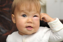 Baby with a swollen eye from an insect bite Stock Images