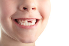 Baby teeth. Stock Photography