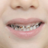 Baby teeth with caries. Close up shot of baby teeth with caries royalty free stock image