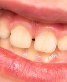 Baby teeth. macro Stock Images
