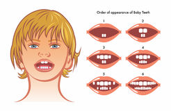 Baby teeth. Medical illustration of order of appearance of baby teeth Stock Image