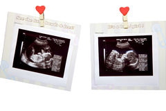Baby ultrasound. Scan pictures of a baby in the belly of her mother Stock Photo