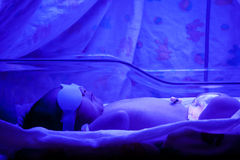 Baby under Phototherapy Royalty Free Stock Photo