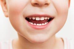 Babylächelnabschluß Lizenzfreie Stockfotos