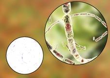 Bacillus anthracis, light micrograph and illustration Stock Image