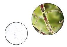 Bacillus anthracis, light micrograph and illustration Stock Photography