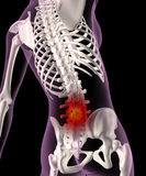 Back ache in a female skeleton Stock Photography