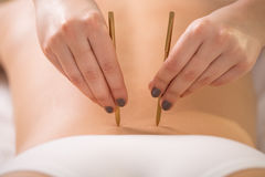 Back acupuncture Royalty Free Stock Photos