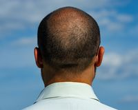 Back of the balding man. Age 40 years.Creative portrait of a man royalty free stock photos