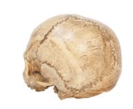 Back of Human Scull Stock Photo