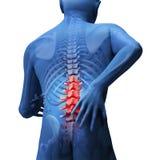 Back hurt stock illustration
