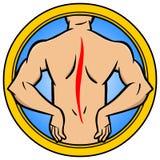 Back Injury Stock Image