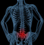 Back pain. 3D render of a skeleton highlighting pain in the back Stock Image