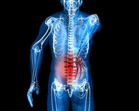 Back pain. Man suffering badly of back pain, 3D generated Royalty Free Stock Image