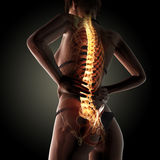 Back pain. 3d rendered illustration of back pain Stock Photo