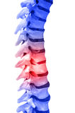 Back pain. Human Spinal-column model, isolated on white, with red for pain Stock Images