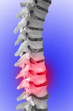 Back pain. Human Spinal-column, showing red for pain Stock Photography